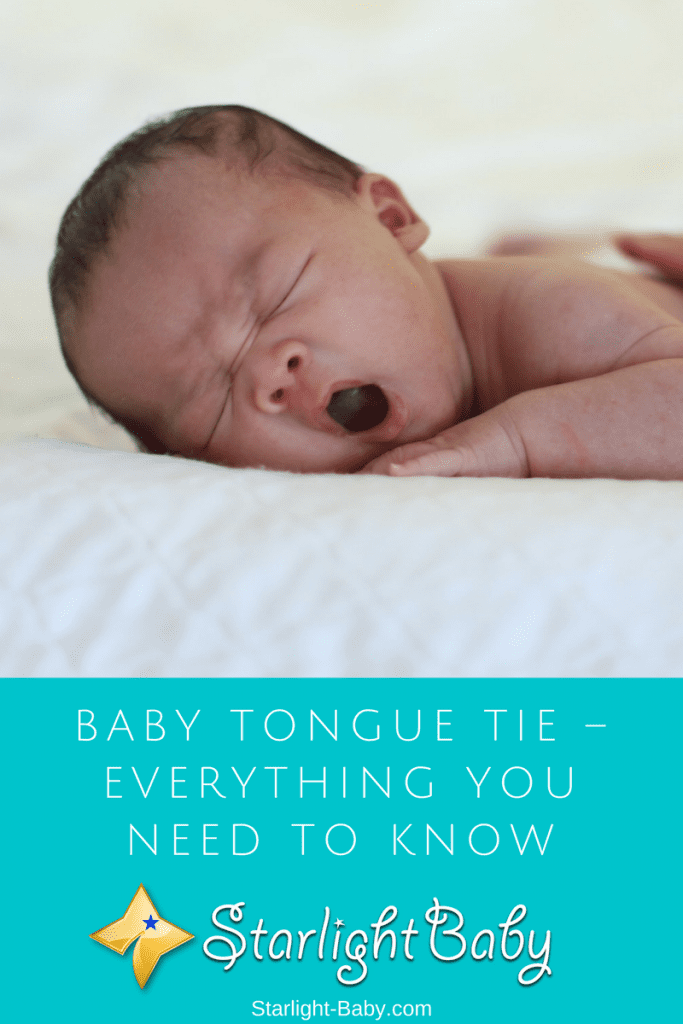 Baby Tongue Tie – Everything You Need To Know
