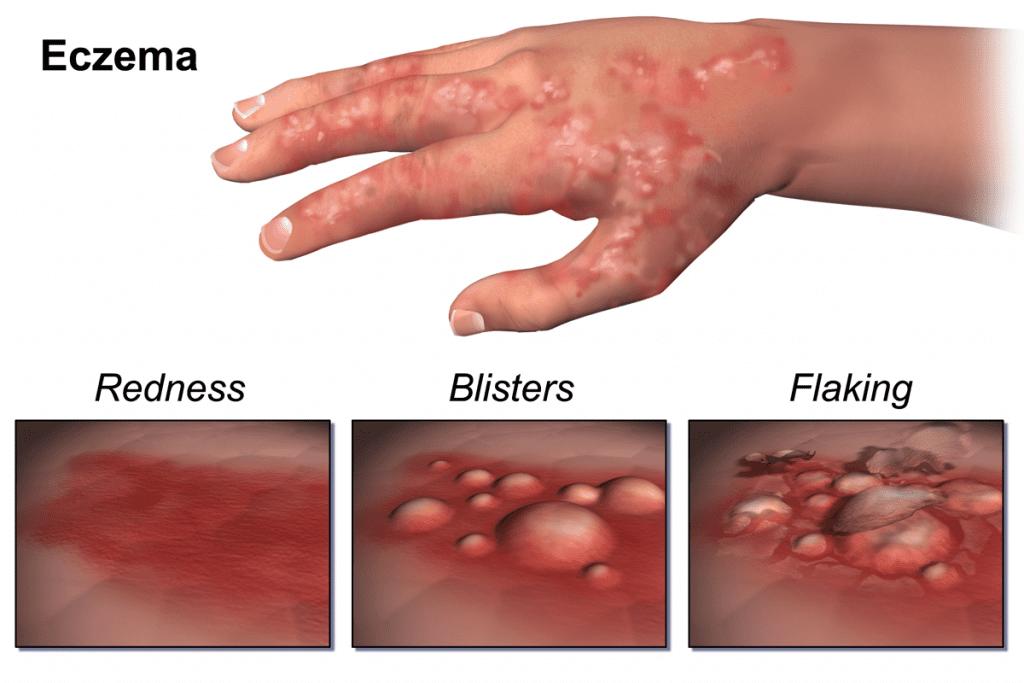 Baby Eczema Symptoms
